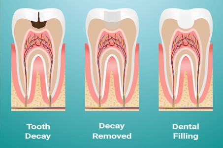 Dental Fillings Virginia Beach