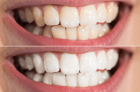Sheer White Teeth Whitening Virginia Beach
