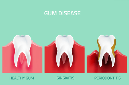 Teeth Cleaning Infographic