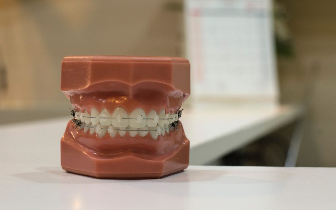 10 Things You Should Know Before Getting Braces