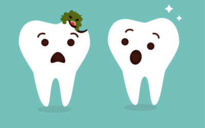 Smoothing Over Tooth Decay With Dental Fillings