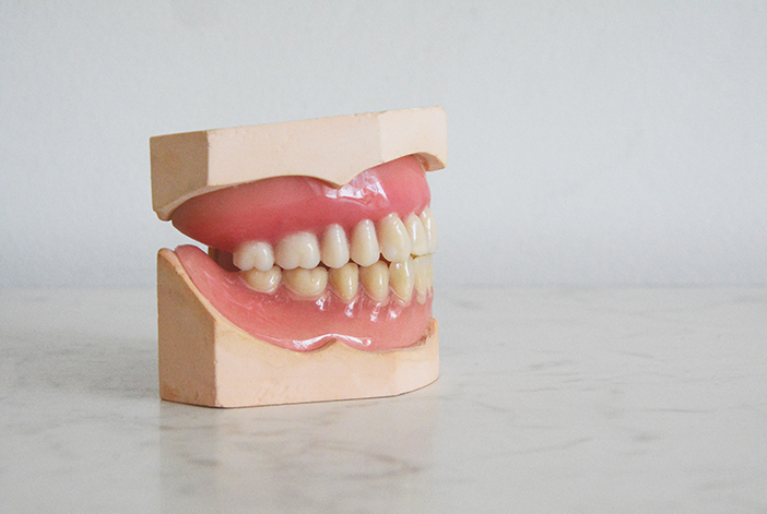 When is it Necessary to Remove Wisdom Teeth?