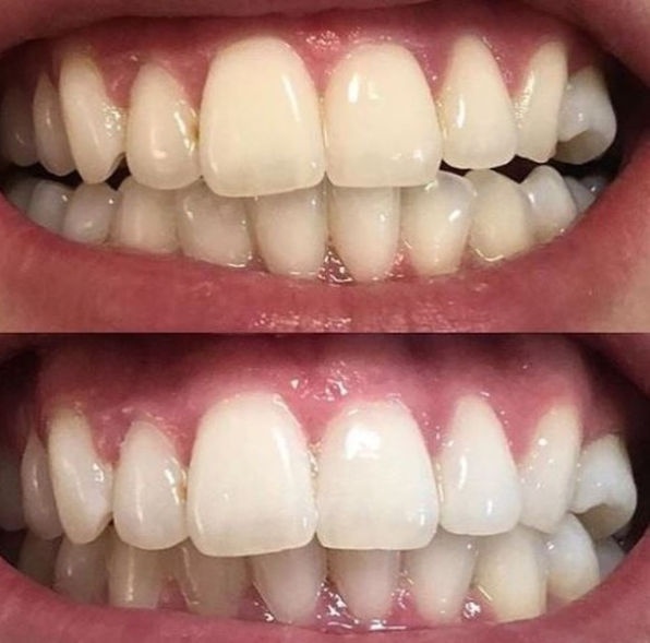 before and after teeth cleaning