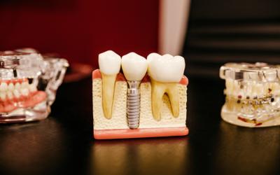 Full Mouth Dental Implant Treatment