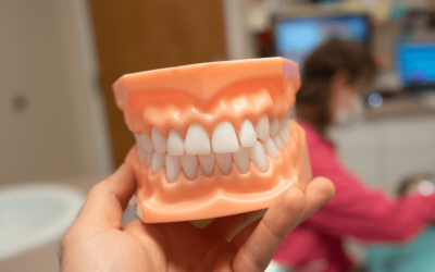 Why Teeth Cleanings Are Essential